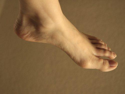 stopa cukrzycowa